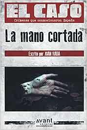 El Caso: La mano cortada