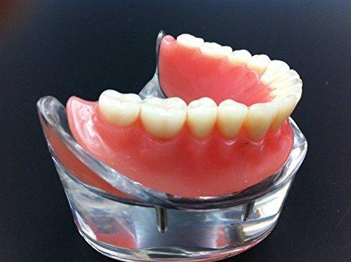 Levin Dental Nuevo extraíble overdenture inferior con 4implantes demostración dientes Estudio Modelo