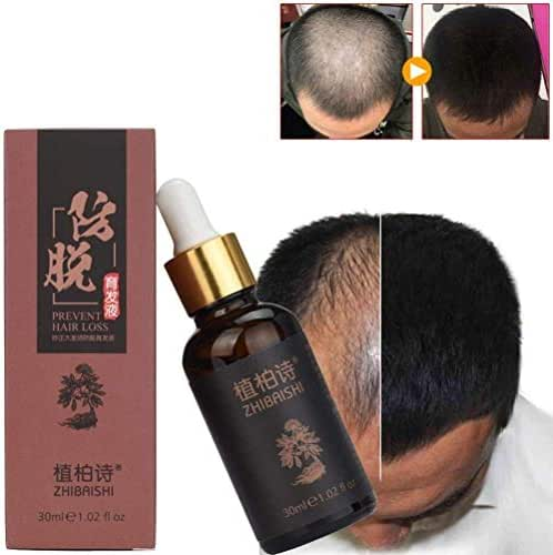 Hair Care Oil,Lotus.Flower 30ML Herbal Hair Serum, Hair Growth Serum, Healthier Hair, Nourishing Essences for Hair Care, Hair Oil Natural Hair Loss Treatment (30ml)