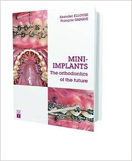 Mini-implants: The Orthodontics Of The Future por Skander Ellouze epub