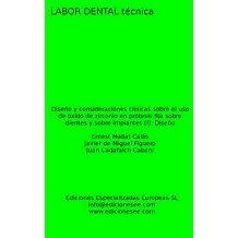 Diseño y consideraciones clínicas sobre el uso de óxido de zirconio en prótesis fija sobre dientes y sobre implantes (I): Diseño (Labor Dental Técnica nº 13) (Spanish Edition)