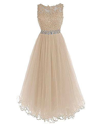 Party Lace Dresses Formal Tulle Long Dresses Champagne BD284 Back Evening Open BessDress FxAqw8CC