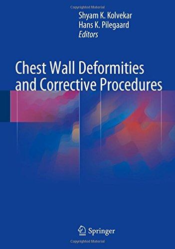 Chest Wall Deformities And Corrective Procedures Epub