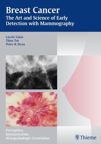 Breast Cancer The Art and Science of Early Detection with Mammography Perception, Interpretation, Histopathologic Correlation (1st 2004) [Tabar, Tot & Dean]