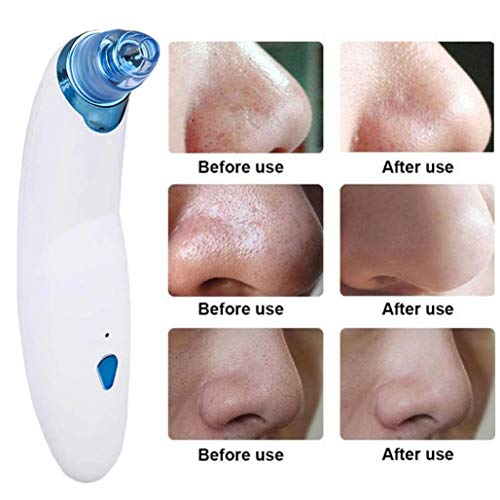 Blackhead Remover, Electronic Blackhead Vacuum Suction Removal, Skin Facial Pore Cleaner, Comedo Microdermabrasion Exfoliating Machine for Women & Men (Blue) by Sunshinehomely