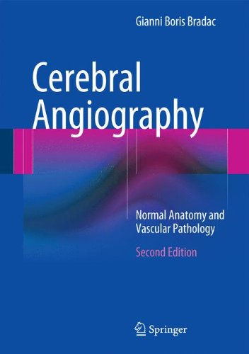 Cerebral Angiography  Normal Anatomy And Vascular Pathology