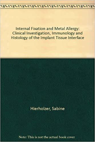 Téléchargement de livres électroniquesInternal Fixation and Metal Allergy: Clinical Investigation, Immunology and Histology of the Implant Tissue Interface PDF RTF DJVU