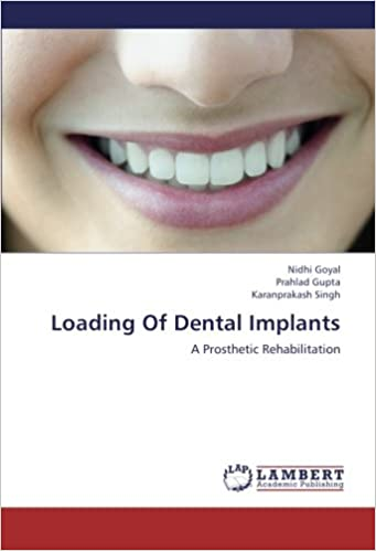 Book Loading Of Dental Implants: A Prosthetic Rehabilitation