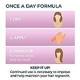 Regoxidine Women's 5% Minoxidil Foam Helps