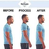 Back Brace Posture Corrector for Men Women Perfect
