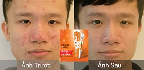 01 Tube - Nacurgo Gel - TRỊ MỤN HIỆU QUẢ -Acne effect-Ship From USA time 7-14 days