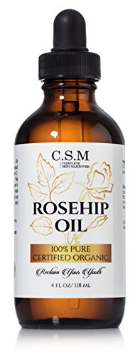 100% ORGANIC ROSEHIP SEED OIL (4 oz) ? Amazing ANTI-AGING Skin Care Product to Repair Dry Skin With Antioxidants, Vitamin A, and Vitamin C