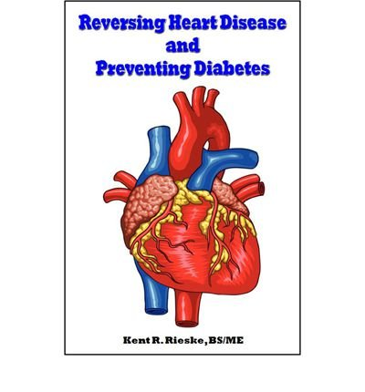 Reversing Heart Disease and Preventing Diabetes : Apply Science to Lower Cholesterol 100 Points; Reduce Arterial Plaque 50% in 25 Months; and Improve Heart Rhythm and Valves(Paperback) - 2015 Edition pdf