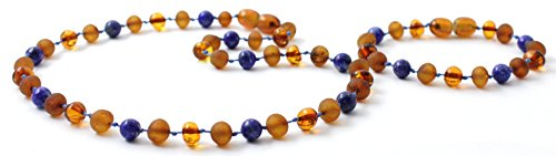 Baltic Amber Teething Necklace and Bracelet/Anklet Set for Baby made with Lapis Lazuli Beads - Cognac Amber Beads - BoutiqueAmber (Cognac/Lapis Lazuli)