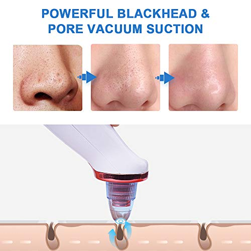 Blackhead Remover Vacuum Pore Cleaner, WanderLand Blackhead Suction Remover USB Rechargeable Extraction Tool with 5 Suction Heads for Women & Men