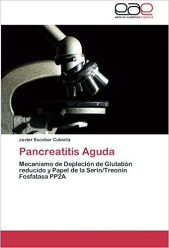 Pancreatitis Aguda: Amazon.es: Escobar Cubiella Javier: Libros