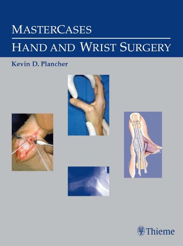 MasterCases Hand and Wrist Surgery (1st 2004) [Plancher]