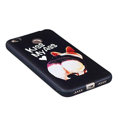 Funda Xiaomi Redmi 4X, CaseLover Negro Suave Silicona TPU Carcasa para Xiaomi Redmi 4X Ultra Delgado Flexible Gel Protectora Tapa Anti-Arañazos Movil Celular Cubierta Ligero Caja Anti-Rasguños Espalda Kiss My Ass