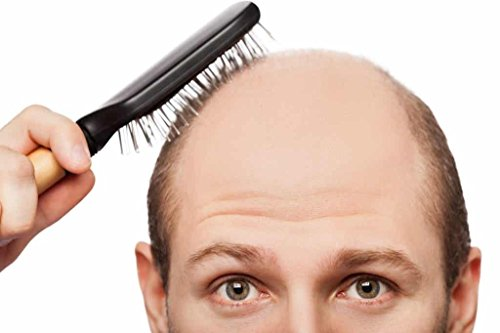 hair loss supplements zinc - DHT BLOCKER HAIR FORMULA - FOR MEN AND WOMEN - he shou wu for gray hair - 2 Bottles 120 Coated Tablets by VIP VITAMINS (Image #3)