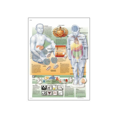 3B Scientific Glossy Paper Diabetes Mellitus Anatomical Chart