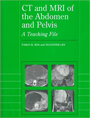 Ct and mri of the abdomen and pelvis a teaching file radiology ct and mri of the abdomen and pelvis a teaching file radiology teaching file 9780683182187 medicine health science books amazon fandeluxe Choice Image