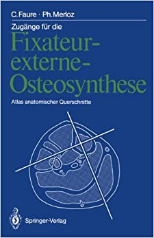 Zugänge für die Fixateur-externe-Osteosynthese: Atlas anatomischer Querschnitte