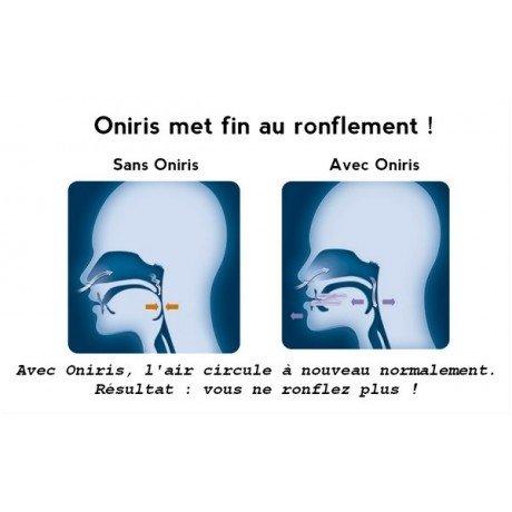 ONIRIS The Anti Snoring Orthosis