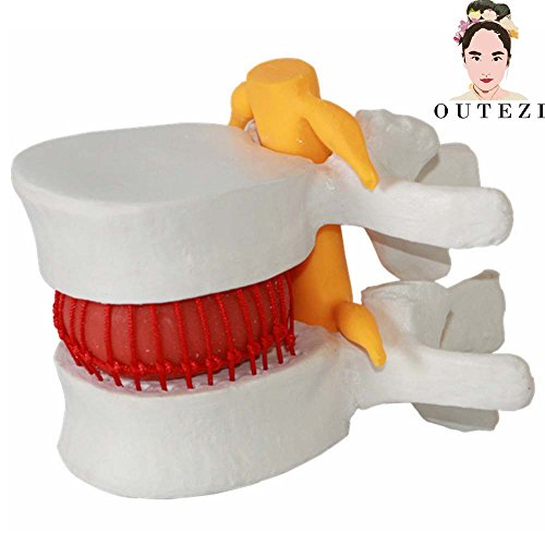 odel Demonstrating herniated disc Teaching Model Brain Skull Traumatic Pistol School Supplies Medical instrume (Skull Spine)