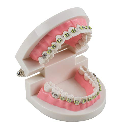 Billy Bob Teeth Braces - Fencia Dental Model Teach Study Adult Dentist Typodont Demonstration Teeth Model with Brackets