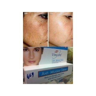 Best Cream Anti-Melasma Reduces Age Spots, Sun Spots, Pigmentation, Freckles 15 G. x 2 Tubes