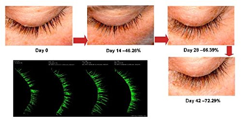 MegaLash - Best Natural Eyelash Eyebrow Growth Serum Oil - Grow Longer, Thicker Eyelashes with this Clinically-Proven Formula that Enhances Lashes but is Gentle on Skin and Eyes