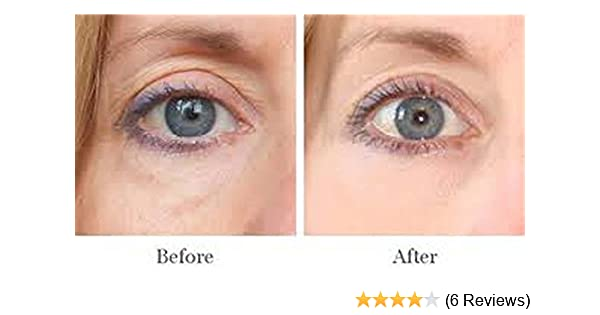 Amazon.com : AMAZING FOR PUFFY EYES, DARK CIRCLE TREATMENT DERMISA ENHANCE APPEARANCE OJERAS : Beauty