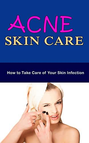 Acne Skin Care: How to Take Care of Your Skin Infection