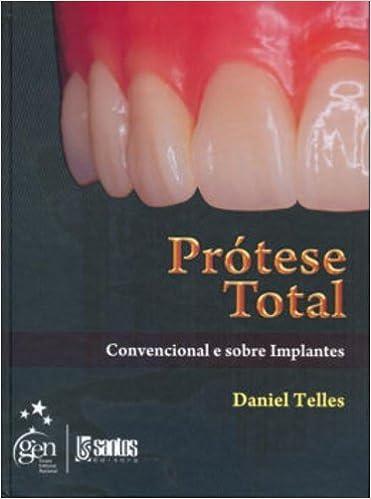 Protese Total: Convencional e Sobre Implantes: Daniel Telles: 9788572887564: Amazon.com: Books