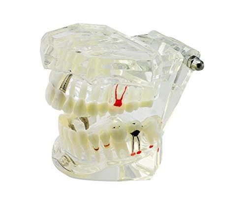 [해외]실험실 장비 과학 교육을 위한 투명 한 임 플 란 트 이동식 치아 연구 성인 병리학 치아 모델 / Transparent Implant Removable Tooth Study Adult Pathological Teeth Model for Lab Equipment Science Teaching