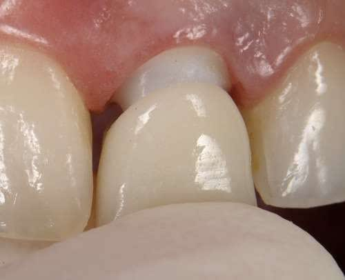 Pre-designing implant abutments in the esthetic zone following biological width and esthetic criteria - New perspectives