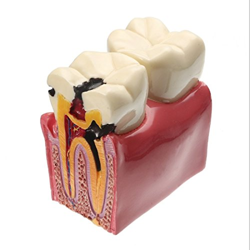 YOUYA DENTAL Decay Teeth Comparation Study Model 6 Times Caries Tooth Teaching Tools