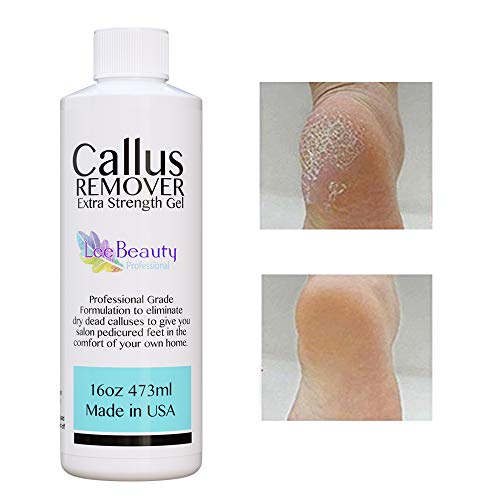 16oz Best Callus Remover.Callus Eliminator,Liquid & Gel For Corn And Callus On Feet. Professional Grade, Does Better Job Than Electric Shaver&Other Scary Tools (Facts About Oz The Great And Powerful)