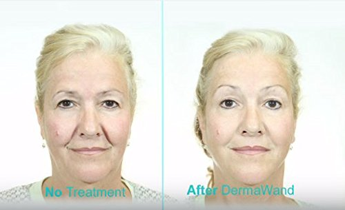 Amazon Dermawand Spanish Language Kit Reduces Wrinkles Beauty