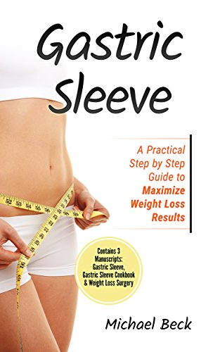 Gastric Sleeve A Practical Step By Step Guide To Maximize Weight