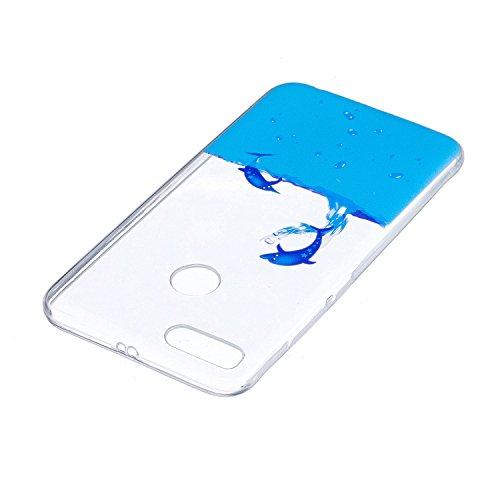 Funda para Xiaomi Mi 5X / Xiaomi Mi A1 , IJIA Transparente Gato Negro TPU Silicona Suave Cover Tapa Caso Parachoques Carcasa Cubierta para Xiaomi Mi 5X / Xiaomi Mi A1 (5.5) WM8