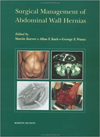 Book Surgical Management of Abdominal Wall Hernias
