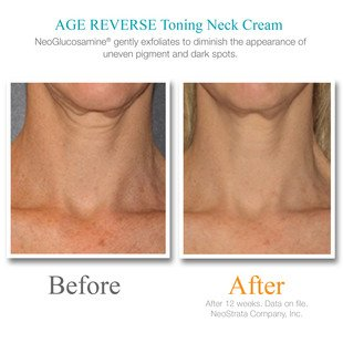 Exuviance Age Reverse Toning Neck Cream - 4.4 oz by Exuviance (Image #3)