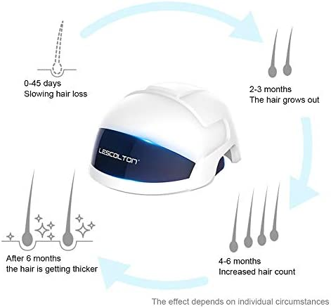 LSXX Hair growth cap Hair growth laser helmet 56 laser light hair growth systems Stimulate hair growth Treatment of oily hair loss tools (650-670nm spectrum red light)