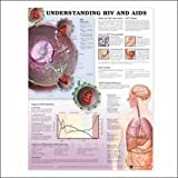 Understanding HIV and AIDS Anatomical Chart, Anatomical Chart Company Staff, 1587798530