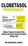 Clobetasol Propionate: Effective Treatment On
