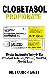 Clobetasol Propionate: Effective Treatment On