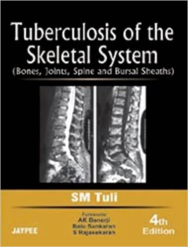 Buy Tuberculosis of the Skeletal System (Bones, Joints, Spine, And ...
