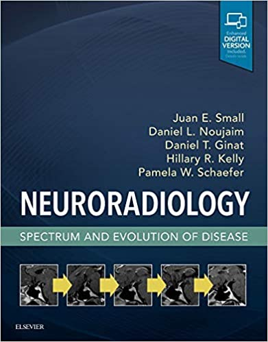 Neuroradiology - Spectrum and Evolution of Disease 41AnS98C1cL._SX389_BO1,204,203,200_