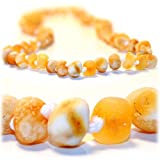 The Art of CureTM *SAFETY KNOTTED* RAW Butter w/white flecks -(Unisex) - Certified Baltic Amber Baby Teething Necklace Highest Quality Guaranteed- Drooling & Teething Pain. Easy to Fastens with a Twist-in Screw Clasp Mothers Approved